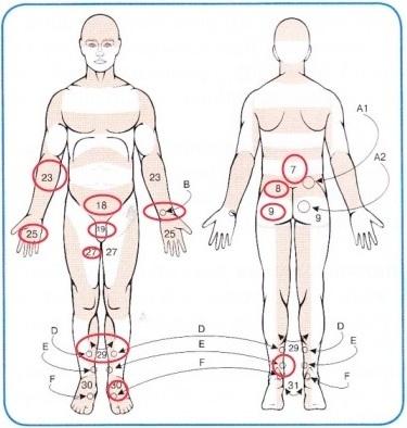 Зоны активных точек на теле человека